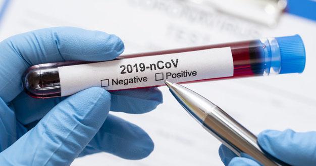 1. IDAI menilai bahwa perkembangan pandemi Covid-19 kembali meningkat