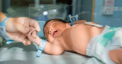 4 Gangguan Kromosom Menyebabkan Kelainan Bawaan Bayi