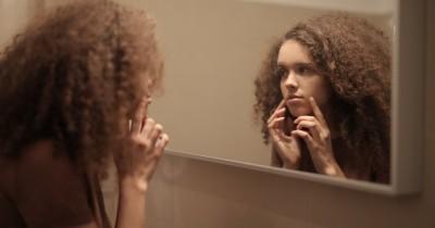 5 Cara Mengatasi Jerawat Kulit Kering Sensitif
