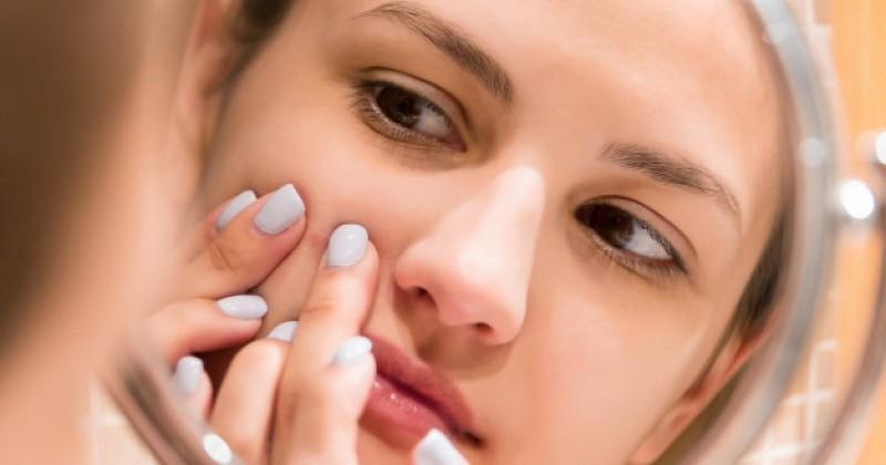 7 Cara Alami Menghilangkan Flek Hitam Di Wajah Akibat Kb Popmama Com