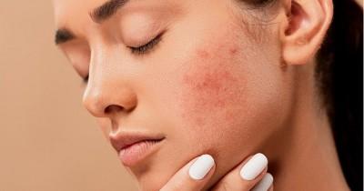 5 Rangkaian Merek Skin Care Khusus Mengatasi Kulit Berjerawat