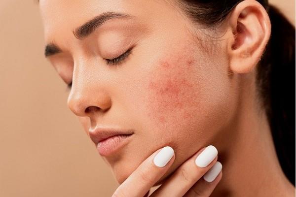 Rangkaian Merek Skin Care Khusus Mengatasi Kulit Berjerawat | Popmama.com