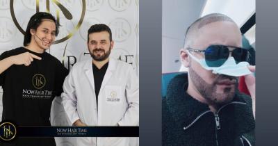 5 Fakta Kevin Aprilio Transplantasi Rambut, Raffi Ahmad Juga Pernah