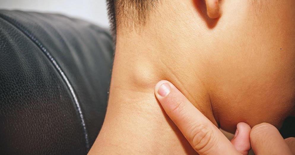 Kenali Limfadenopati, Pembengkakan Kelenjar Getah Bening pada Anak