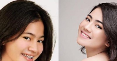 7 Transformasi Felicya Angelista dari Remaja hingga Hamil Anak Pertama