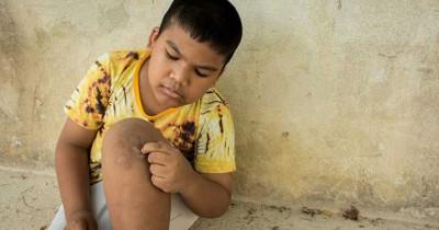 7 Cara Efektif Mengatasi Skin Picking Disorder Anak