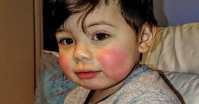 5 Penyebab Kulit Wajah Bayi Memerah Perlu Mama Waspadai