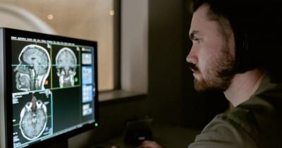 Waspada, Perhatikan 5 Tanda Peringatan Tumor Otak Sedini Mungkin