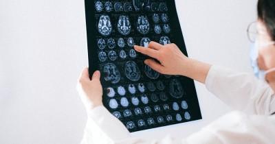 5 Fakta CerebralEdema Bisa Mengancam Jiwa