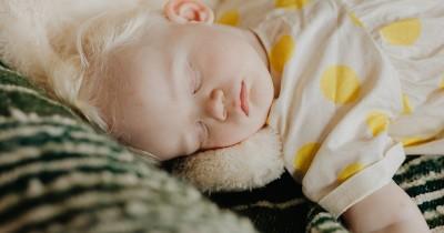 Kejang Parsial Kompleks Anak Gejala, Penyebab, Pengobatan